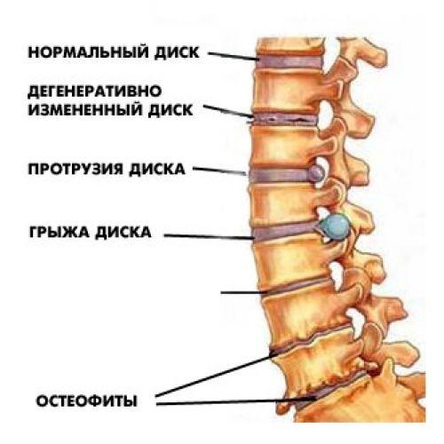 Ходячая боль на спине