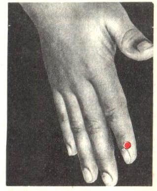 точечный массаж при зубной боли - точка обезболивания