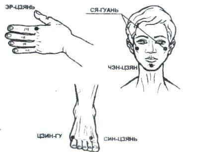 точки при снятии боли в нижней челюсти