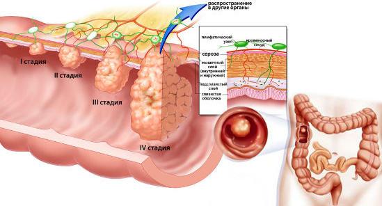 стадии формирования полипа в кишечнике