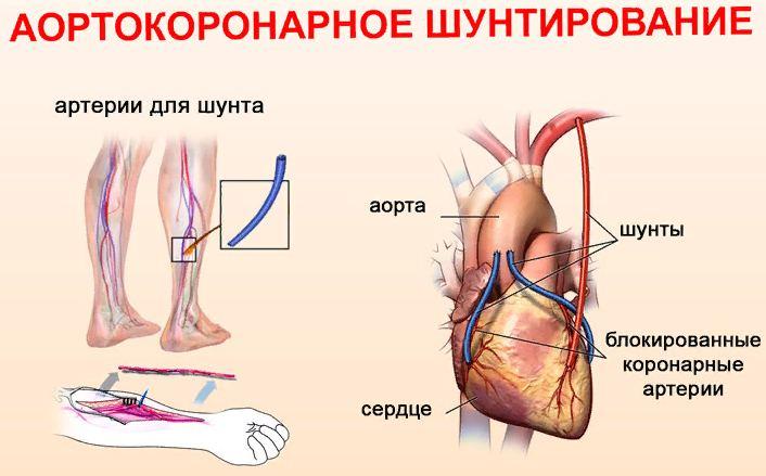 что такое аортокоронарное шунтирование сосудов сердца