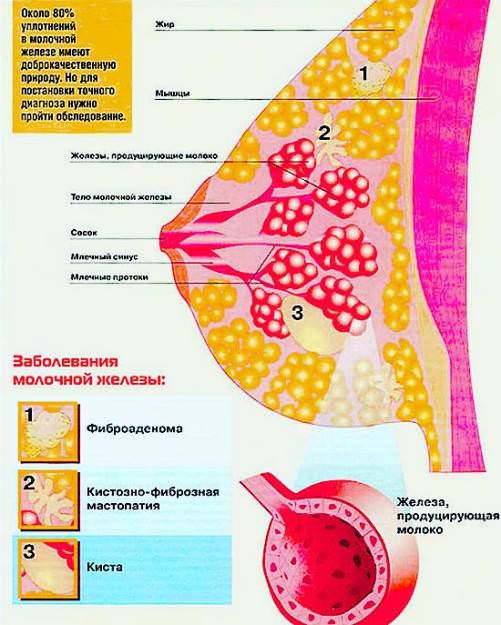признаки мастопатии, лечение