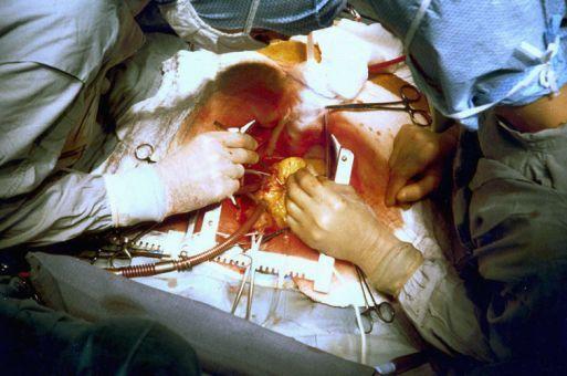 лечение ИБС сердца - шунтирование