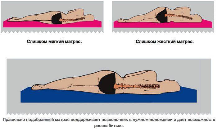 выбор матраса ортопедического