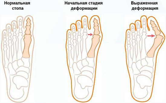 деформация при выпирающей косточке на ногах