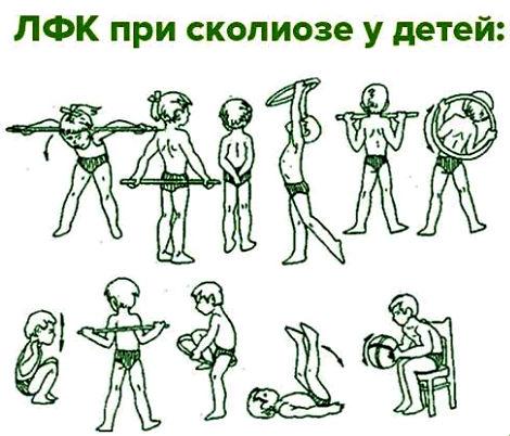 упражнения при сколиозе детей