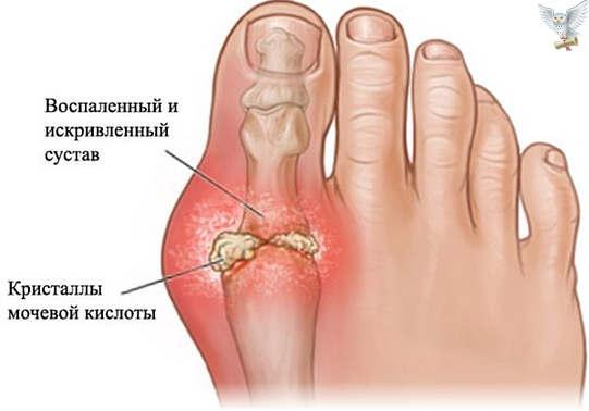 Почему болит большой палец ноги Причина боли в пальцах