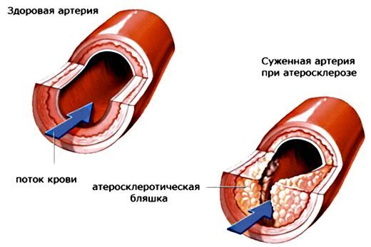 атеросклероз, его развитие, лечение атеросклероза народными средствами