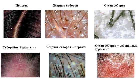причины и симптомы себрейного дерматита