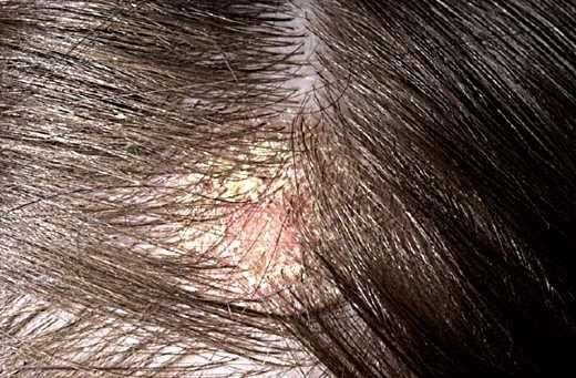 лечение себорейного дерматита, себорея