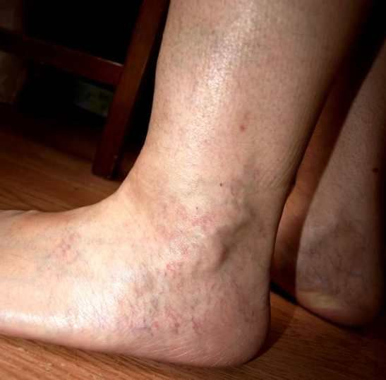От чего варикоз на ногах у женщин и как его лечить