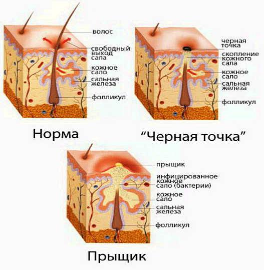 очищение кишечника препараты список