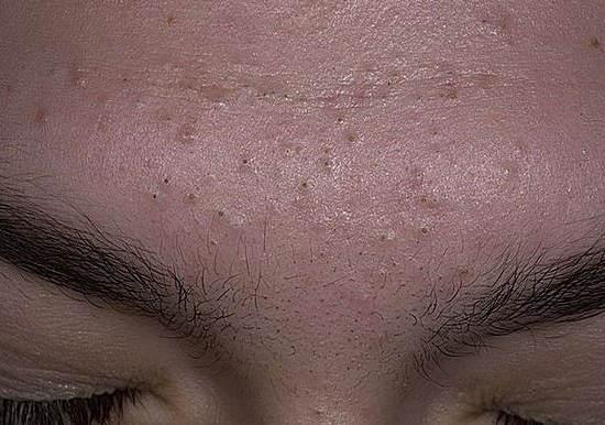 как избавиться от черных точек на лице, носу