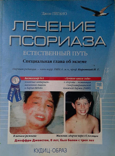 пегано лечение псориаза