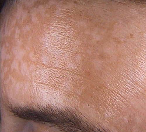 пигментные пятна на коже, как избавиться от пигментации