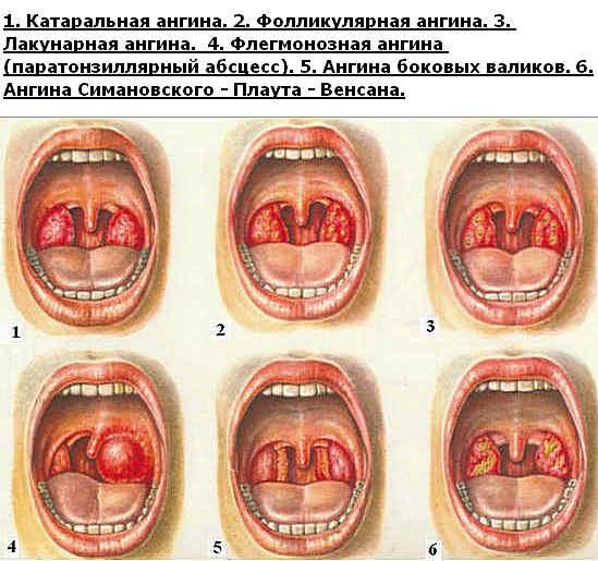 очищение организма от паразитов шлаков токсинов