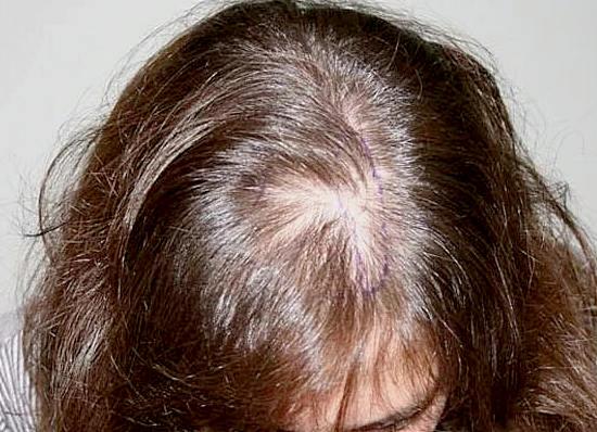 рецепты от облысения, выпадения волос