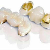 Особенности современного протезирования: коронки, металлокерамика