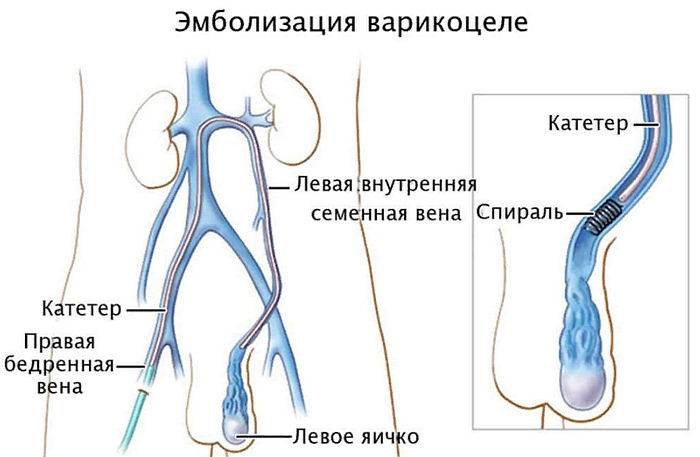 операция при варикоцеле