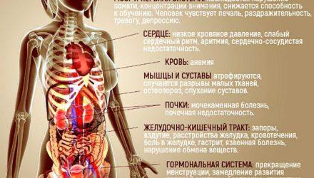 Анорексия — что это, симптомы и признаки, стадии, лечение, последствия