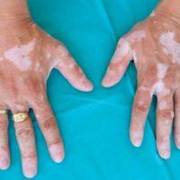 Витилиго — причины, симптомы, стадии, лечение болезни белых пятен
