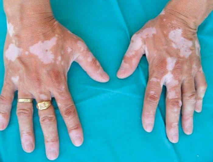 белые пятна витилиго на руках