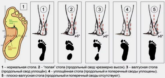 диагностика плоскостопия