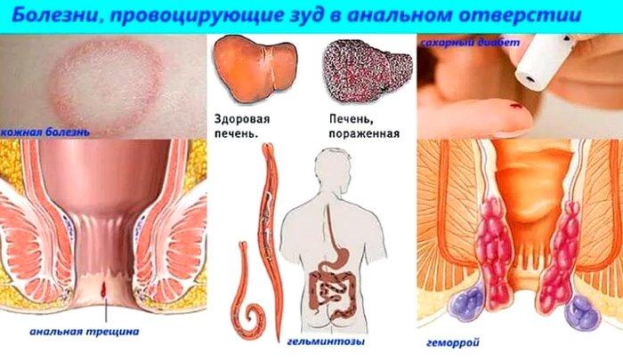 причины анального зуда, какие болезни провоцируют
