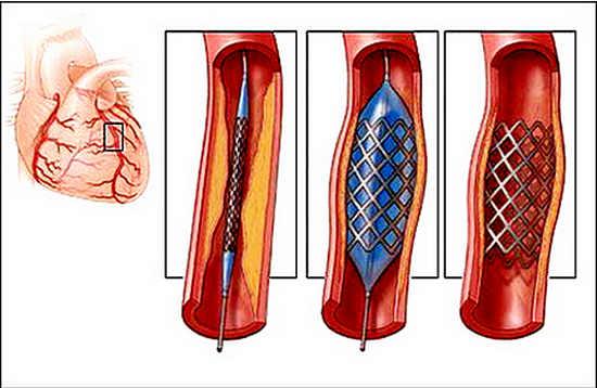 стенирование сосудов сердца