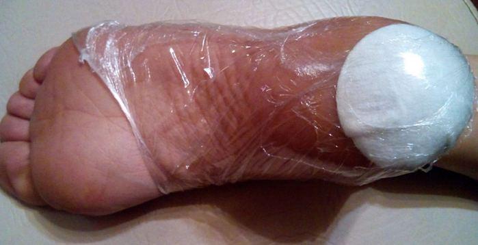 лечение потрескавшихся пяток
