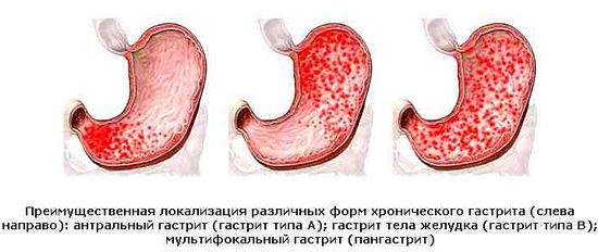 гастрит, причины, симтомы. лечение