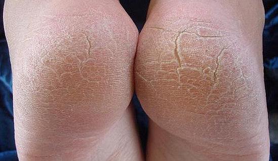 трещины на пятках - причины, лечение