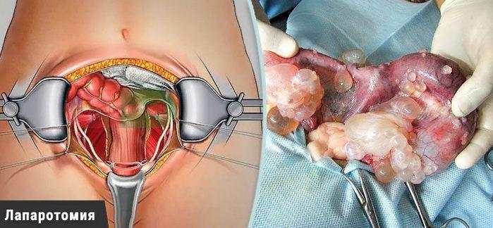 лечение оперативное миомы матки