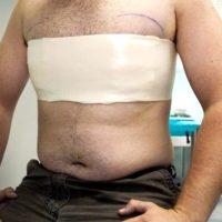 Гинекомастия у мужчин — причины возникновения, лечение, операция