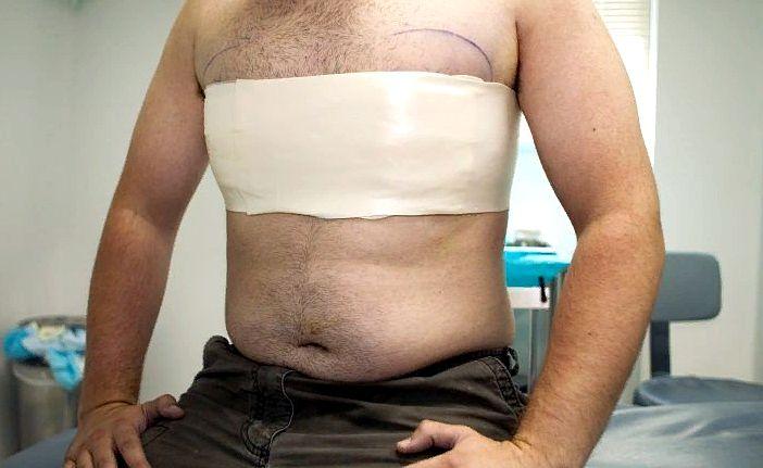 после операции по удалению гинекомастии у мужчины