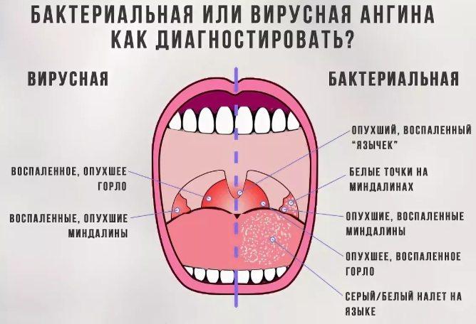 постановка диагноза ангины