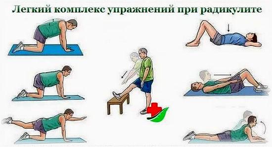 гимнастика, упражнения при радикулите