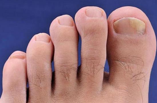 Споры грибка ногтей 57