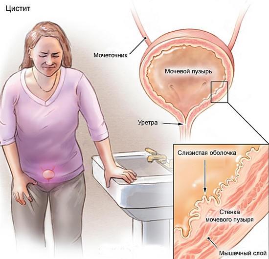 Лечение цистита в домашних условиях, причины, симптомы