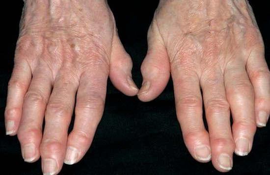 деформирующий артроз симптомы, причины, лечение