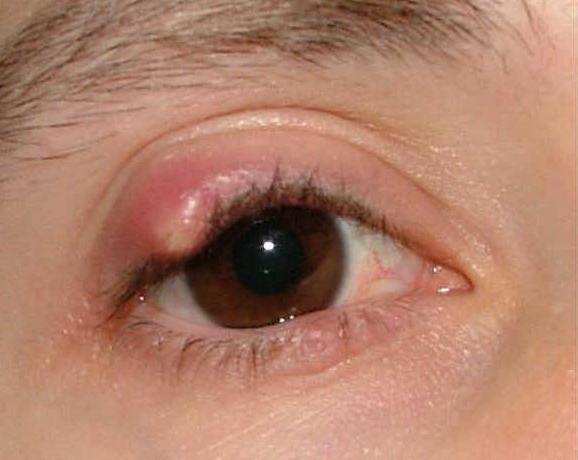 лечение ячменя в домашних условиях на глазу