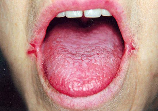 причины и лечение трещин в уголках рта - заед