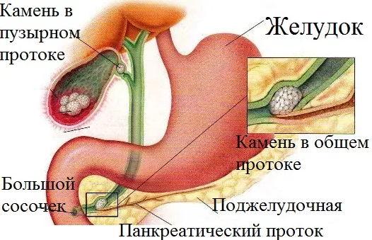 ЖКБ - симптомы и лечение