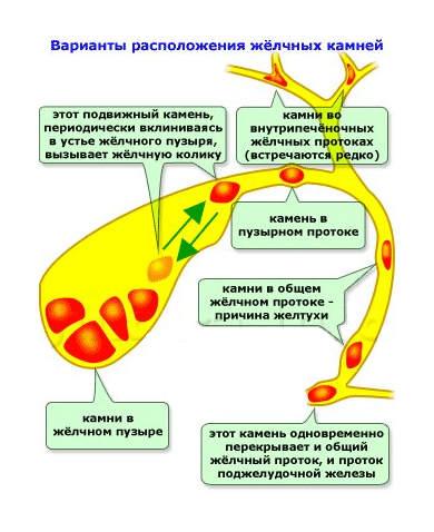 Таблетки для похудения лида отзывы