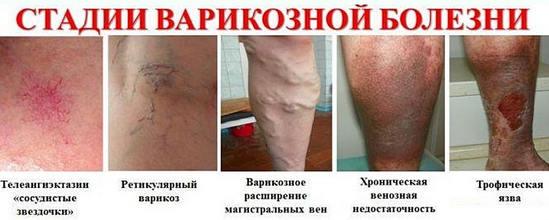 стадии варикозной болезни, ХВН
