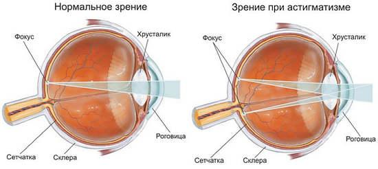 Гимнастика для глаз для восстановления зрения жданова