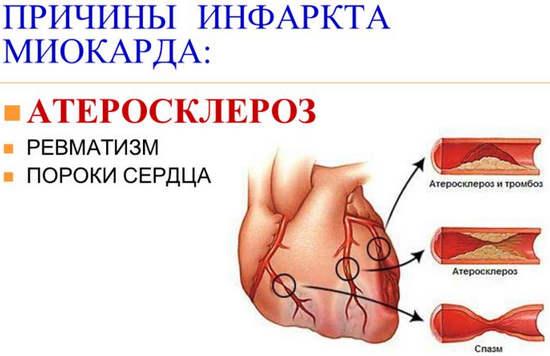 народное лечение от паразитов организме