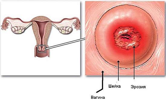 эрозия шейки матки - лечение