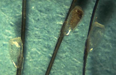 яйца вшей - гниды при многократном увеличении