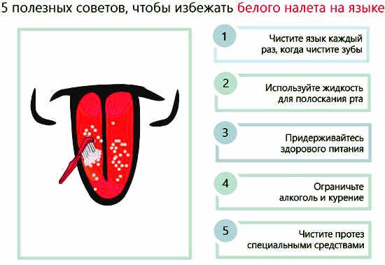 Что означает белый налет на языке как лечить